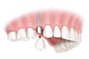 Emergency Dental Health Care in Mosman