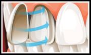 Dental Veneers Melbourne by Captivate Dental